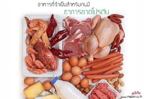 อาหารจำเป็น สำหรับคนมีอาการขาดโปรตีน สำนักพิมพ์แม่บ้าน